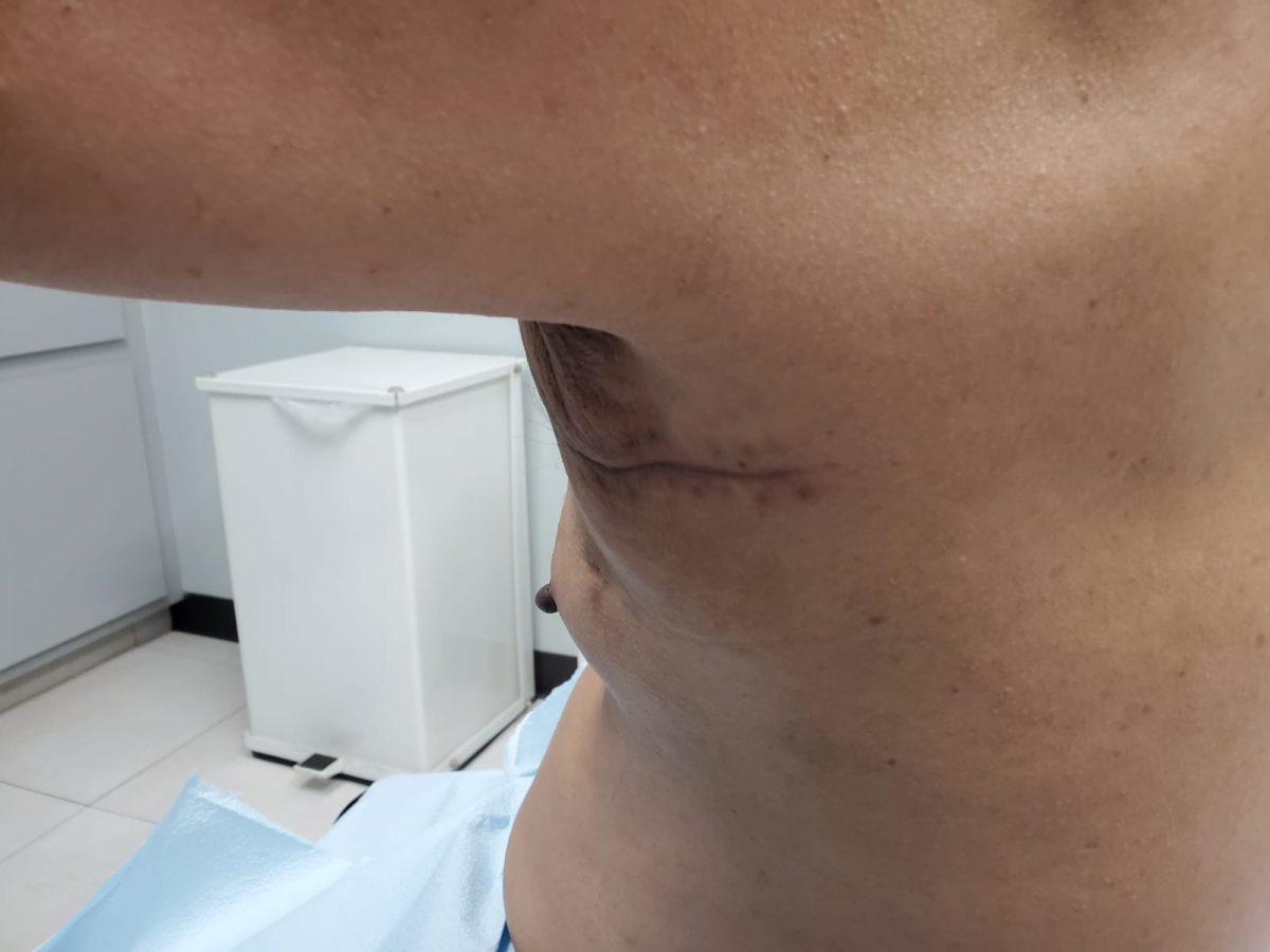 Celestino Lppez Tumor
